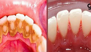 Kocakarı Yöntemi' Diye Tabir Edilen ve Dişlerdeki Plakları Yok Eden Yöntem