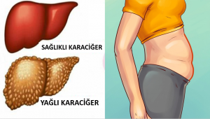 Karaciğerinizin Toksinlerle Dolu Olduğunun 6 Belirtisi