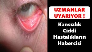 Türkiye'de her 2 kadından 1'i bu hastalıkla uğraşıyor!